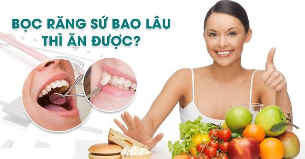 Những lợi ích của việc bọc răng sứ.