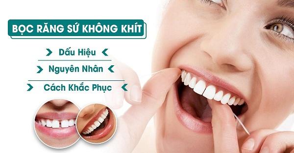 Bọc sứ 4 răng cửa mang lại sự cải thiện những khiếm khuyết.