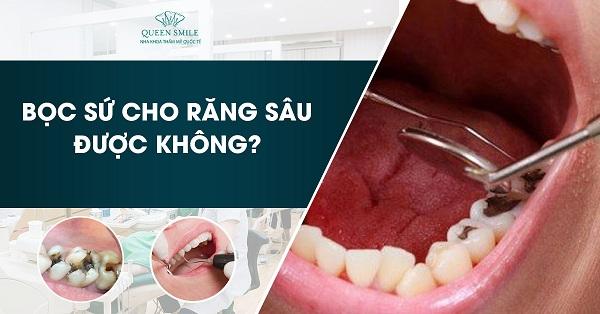 Phương pháp bọc sứ 4 răng cửa chất lượng và uy tín nhất.