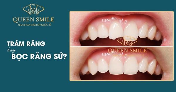 Bọc sứ 4 răng cửa không đau và không ảnh hướng đến sức khỏe